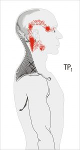 Referred pain M. trapezius